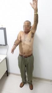 Artropatia de manguito rotador