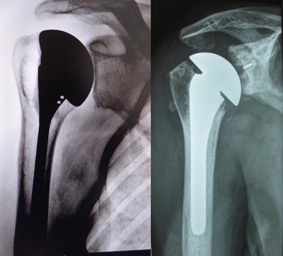 Artrose de ombro - 3
