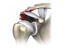 Patologias do Ombro - Artrose