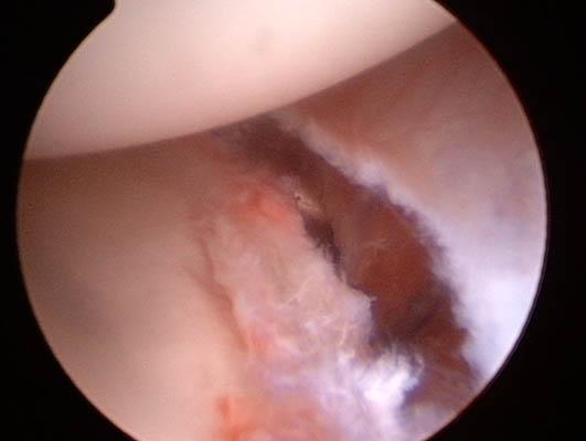 Capsulite adesiva. Videoartroscopia.