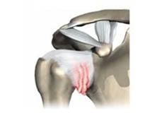 Patologias do Ombro - Capsulite