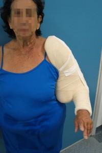 Fraturas no braço-3