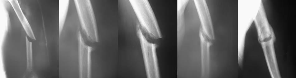 Fraturas no braço
