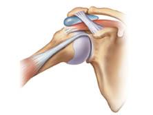 Patologias do Ombro - Impacto
