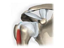 Patologias do Ombro - Lesão Cabo Longo Bíceps