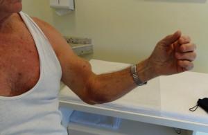 Lesão Cabo Longo do Bíceps 1