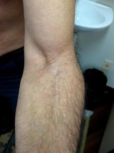 Lesão Distal 3