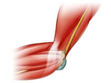 Patologias do Cotovelo - Lesão Distal