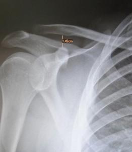 Lesão longo bíceps 2