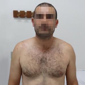 Lesão longo bíceps 5