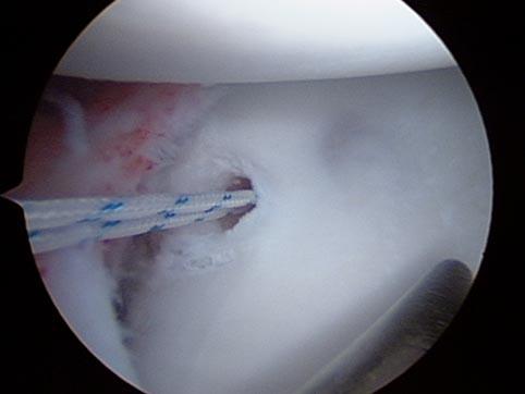 Luxação de ombro - Cirurgia artroscópica.