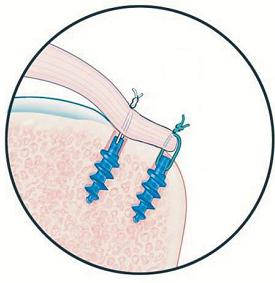 fixação do tendão com âncoras