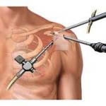 Cirurgia artroscópica de manguito rotador.