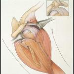 cirurgia aberta do manguito rotador