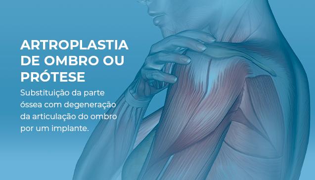 Artroplastia